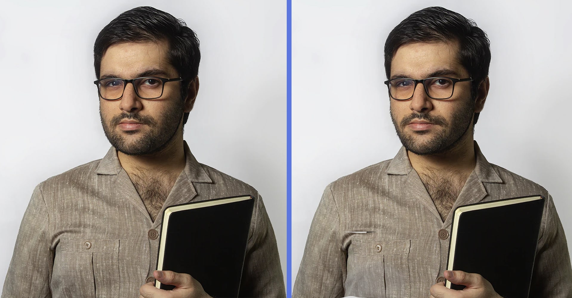 before-and-after-fat-correction